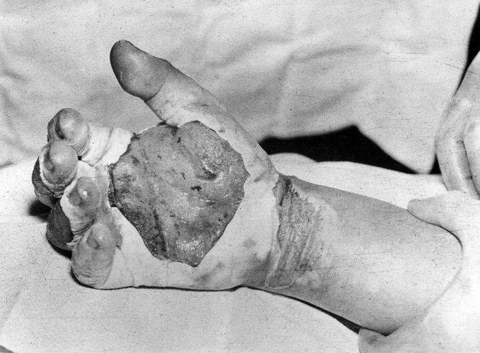 Mão de Harry Daghlian